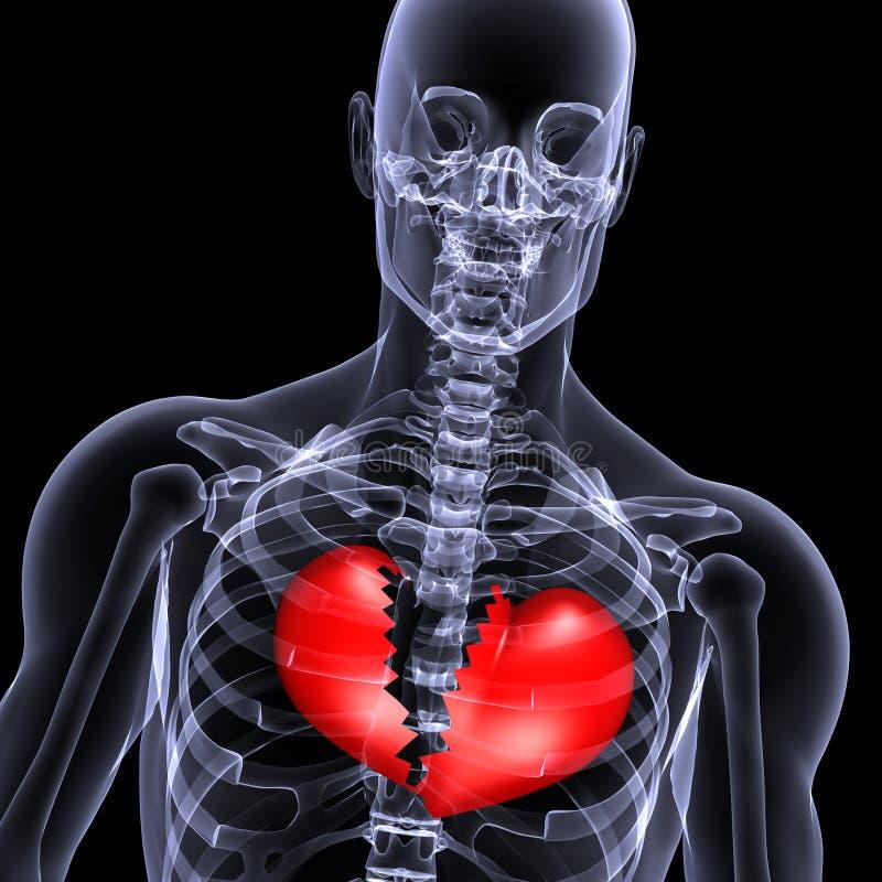 1 broken hjärtastrålskelett x vektor illustrationer