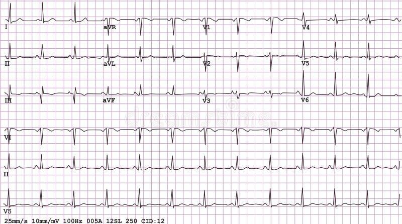 12 elektrokardiogramów prowadzenie royalty ilustracja
