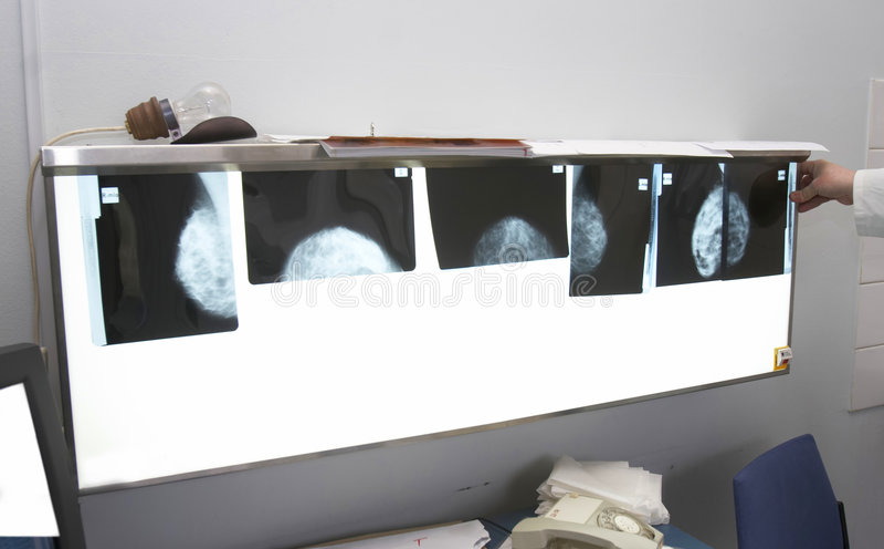 2放射学 免版税图库摄影