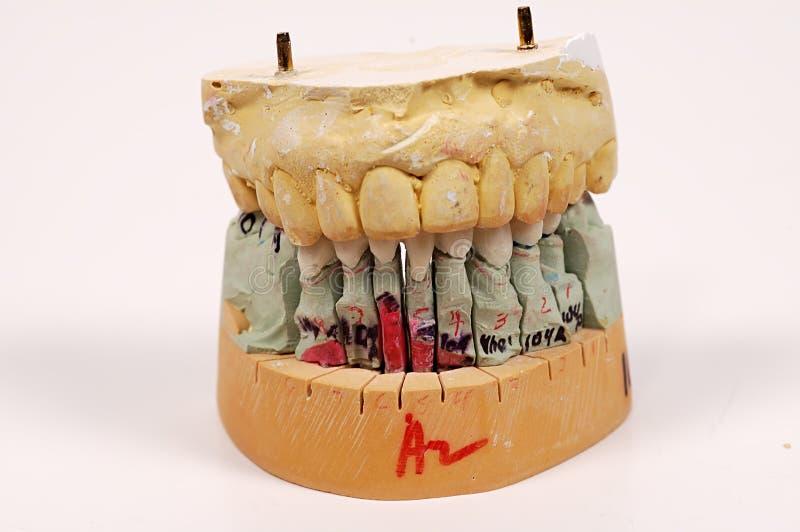 牙齿印象 库存照片