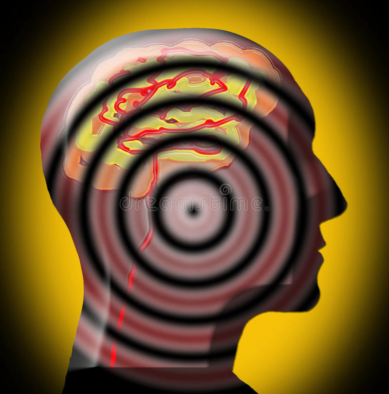 3D cérebro intenso - cabeça - focalizado e no alvo ilustração stock
