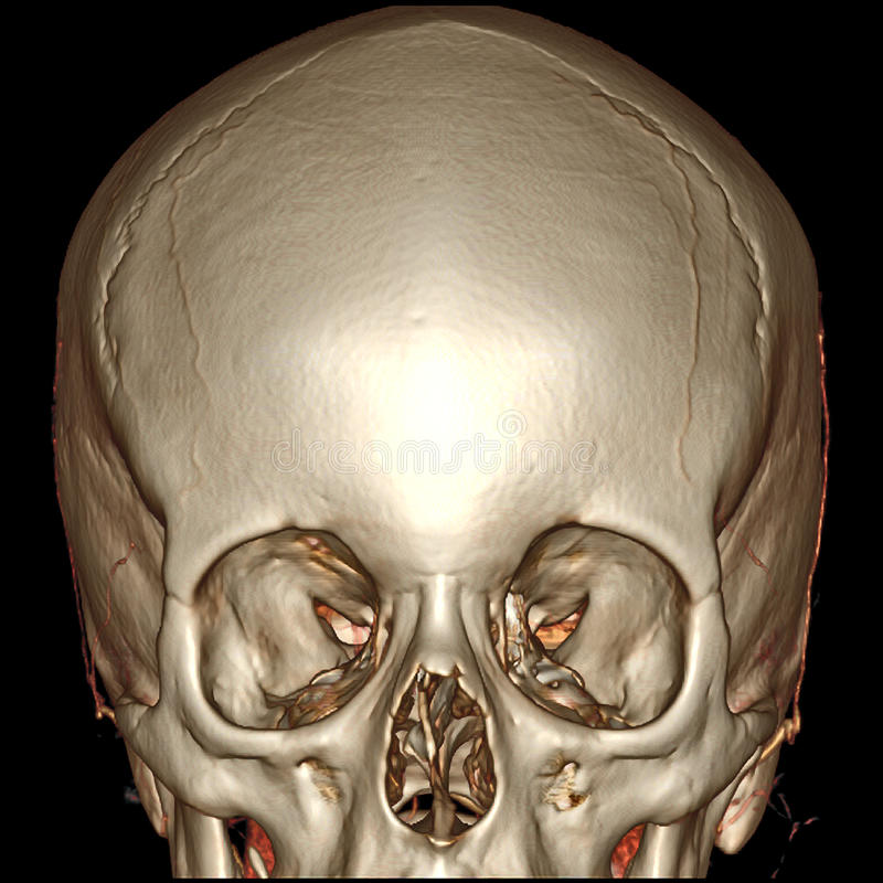 Free 3D CT Brain Front View Royalty Free Stock Photography - 37037667