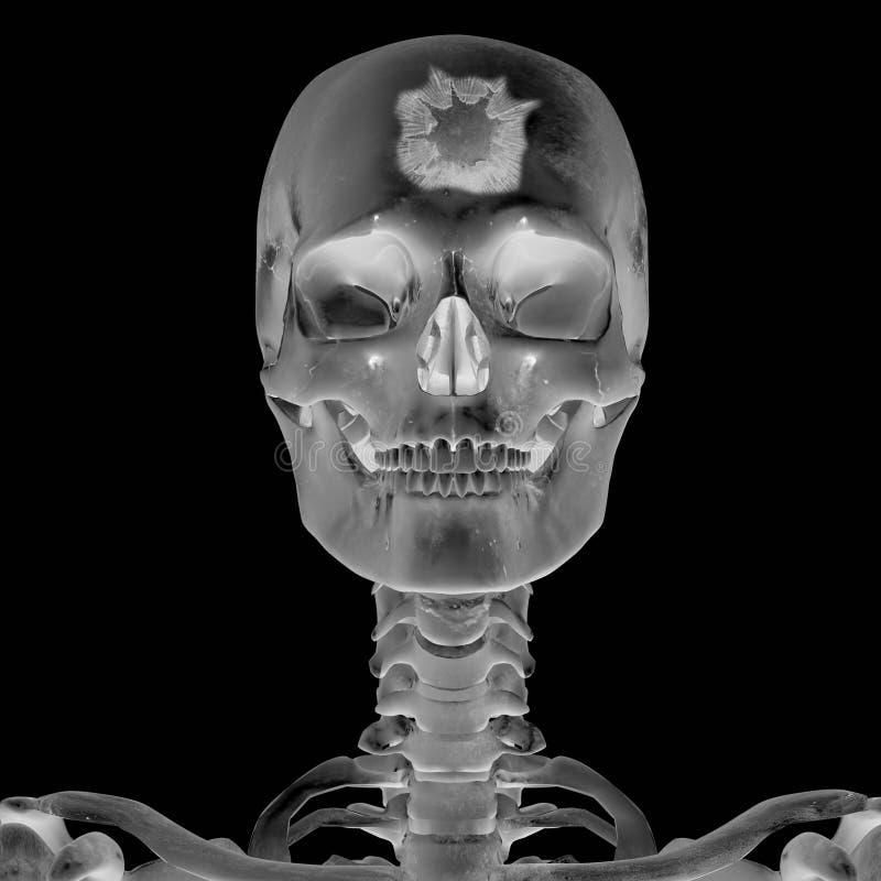 3D Röntgenfoto met hoofdverwonding royalty-vrije illustratie
