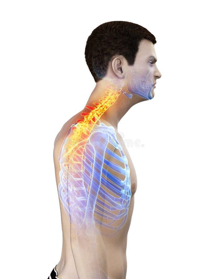 a供以人员痛苦的脖子 库存例证