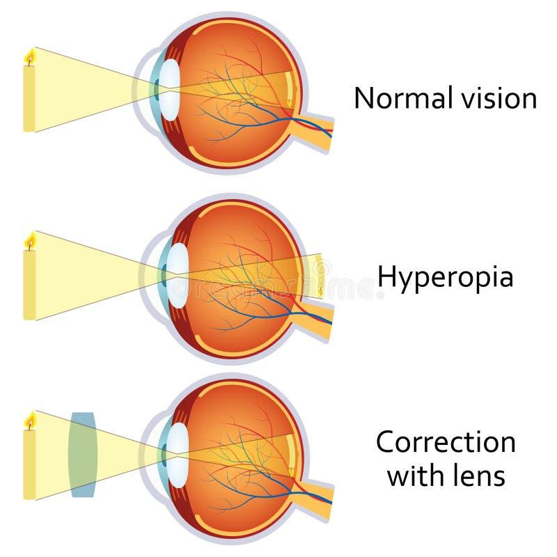 a改正的远视加上透镜 库存例证
