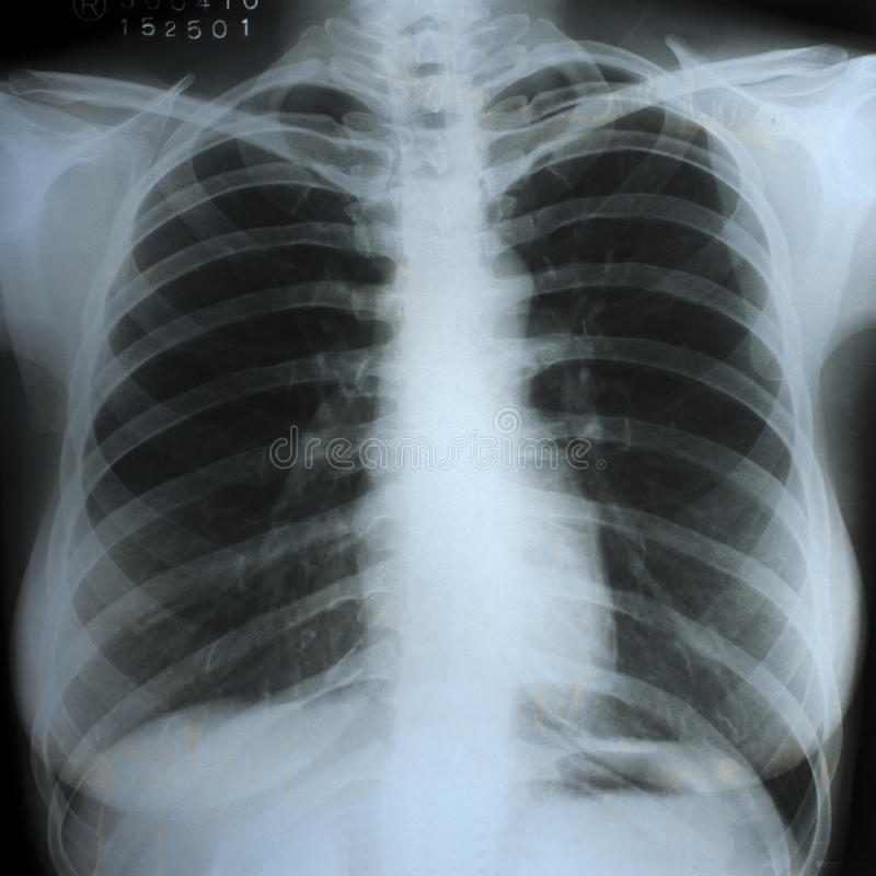 Free A Chest Xray Scan Stock Photos - 26453663