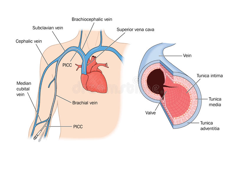Aan de rand opgenomen centrale catheter (PICC) vector illustratie