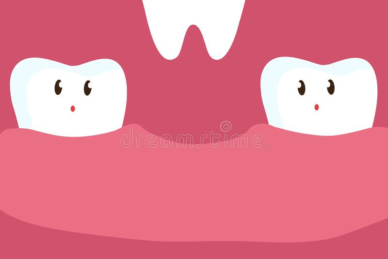 Abaissement de la dent Clinique dentaire illustration stock