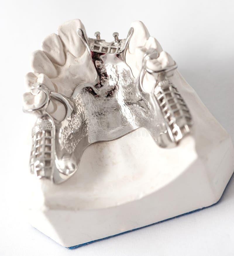 Abaissez le dentier partiel avec des attachements image libre de droits