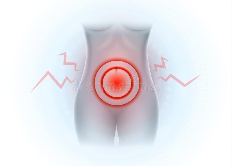 Abaixe a dor abdominal ilustração do vetor