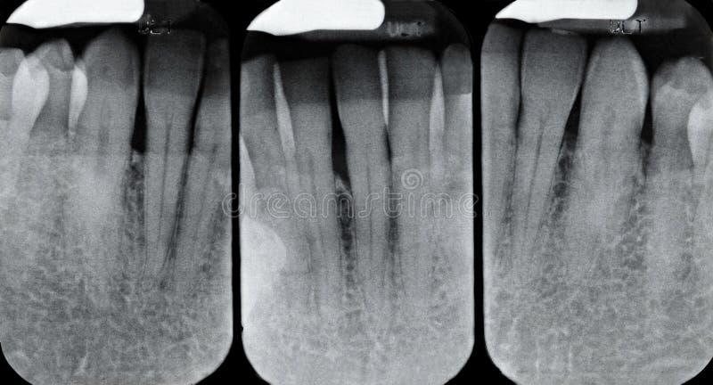 Abaixe raios X peridentais foto de stock