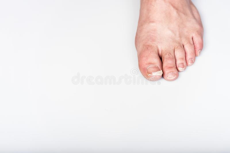 Abandoned fingers on legs, dirty, uncut and broken nails, top view, gray background, health and care. Abandoned fingers on the legs, dirty, uncut and broken stock image