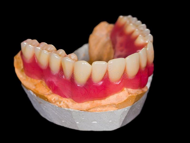Abbassi la protesi dentaria fotografie stock libere da diritti