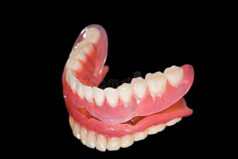 Abbassi la protesi dentaria immagine stock