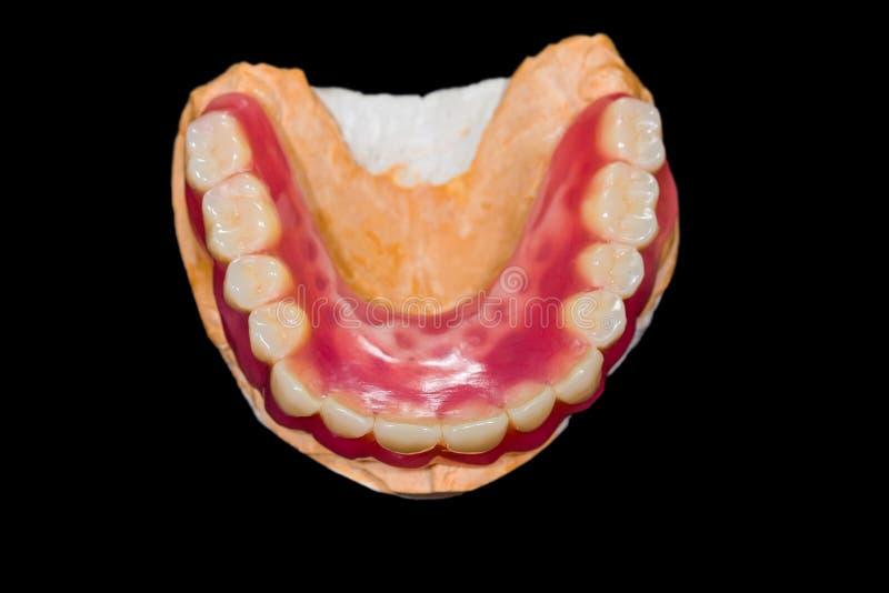 Abbassi la protesi dentaria fotografia stock