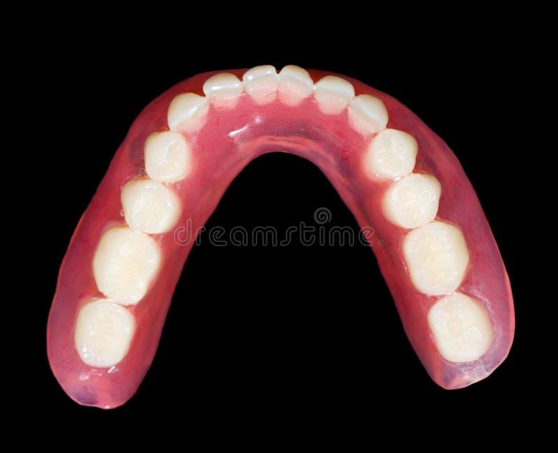 Abbassi la protesi dentaria immagine stock libera da diritti