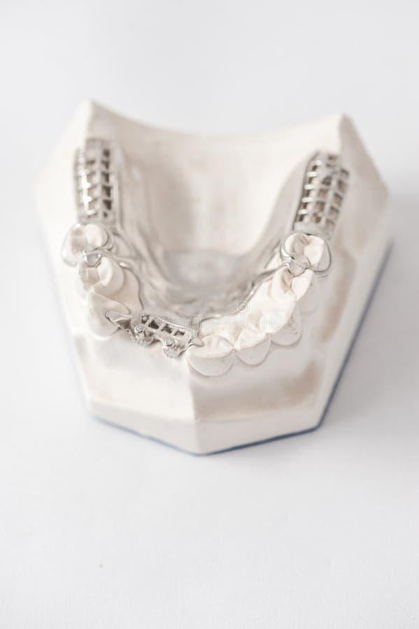 Abbassi la protesi dentaria parziale con i collegamenti immagini stock libere da diritti