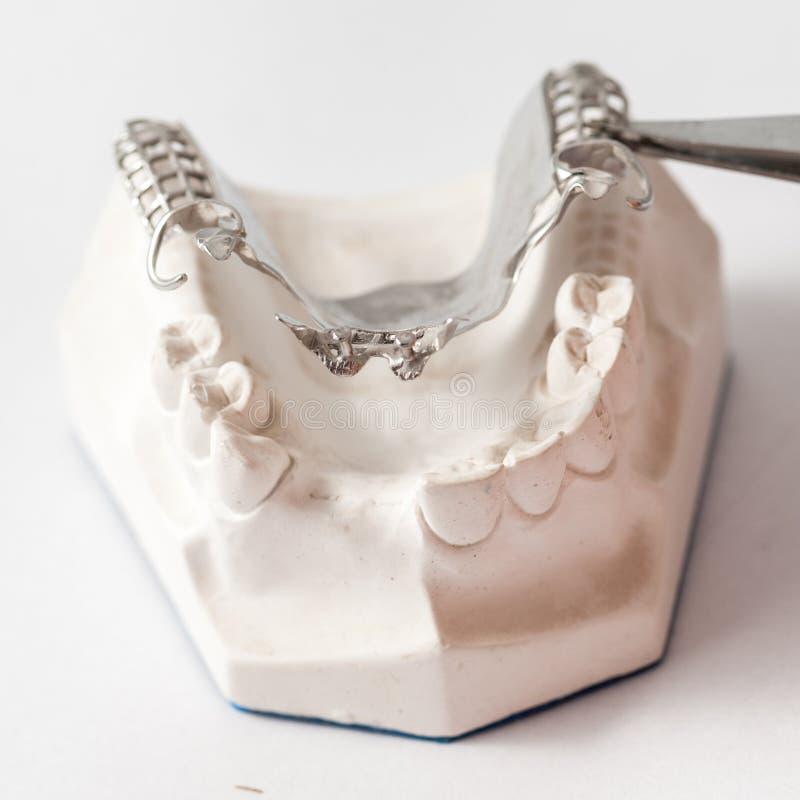 Abbassi la protesi dentaria parziale con i collegamenti fotografia stock libera da diritti