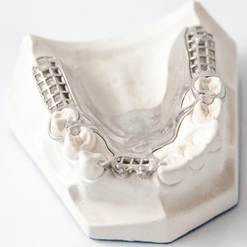 Abbassi la protesi dentaria parziale con i collegamenti fotografie stock libere da diritti