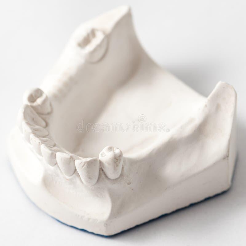 Abbassi la protesi dentaria parziale con i collegamenti fotografie stock