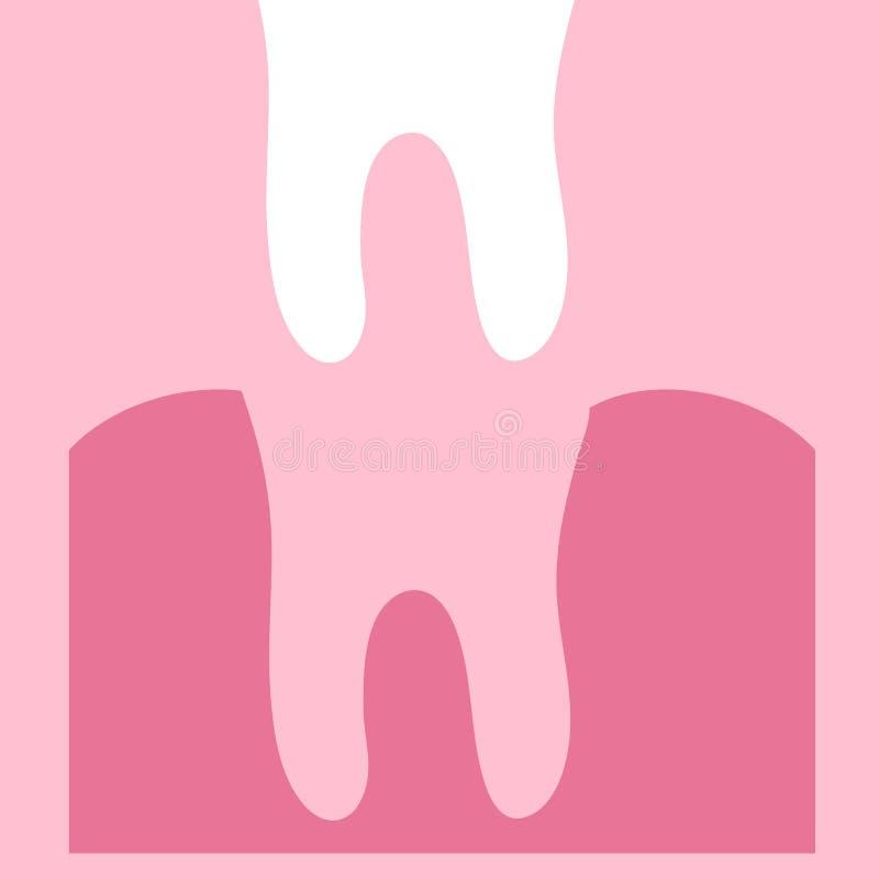 Abbau eines Zahnes Zahn und Gummi auf einem rosa Hintergrund zahnheilkunde lizenzfreie abbildung