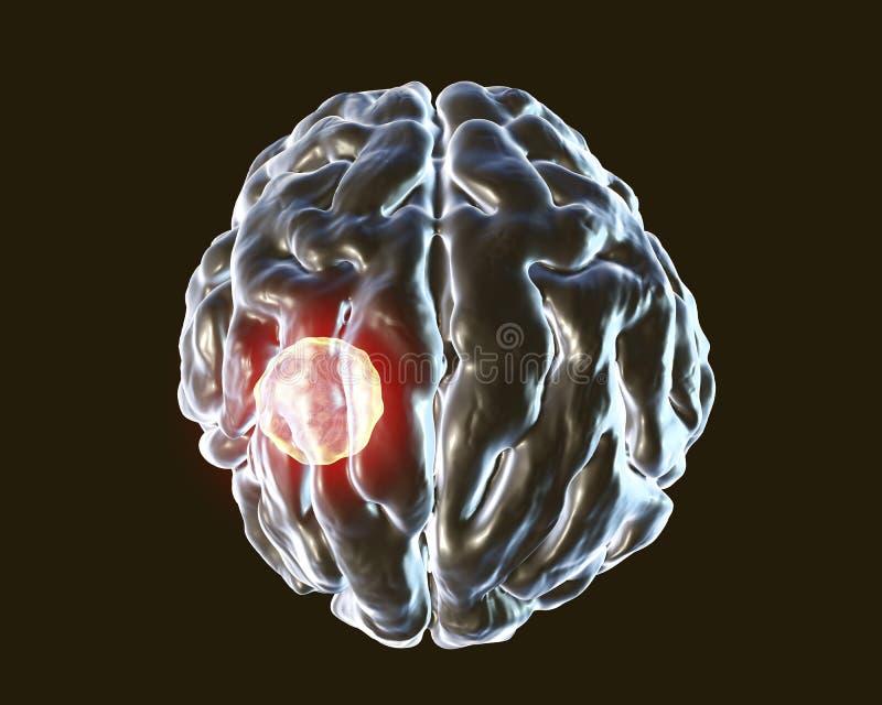 Abcès de cerveau provoqué par gondii de toxoplasme de parasite illustration de vecteur
