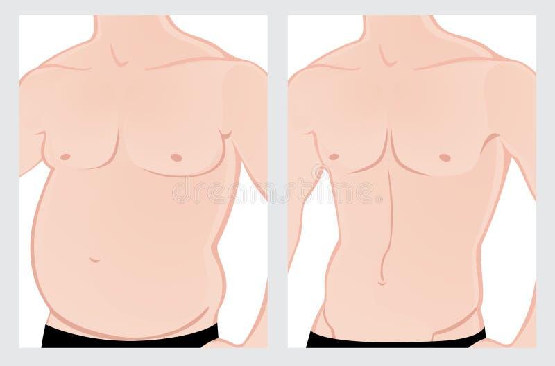 Abdômen masculino antes e depois do tratamento ilustração royalty free
