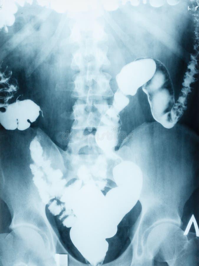 Abdomen del llano de la imagen de la radiografía, dos puntos fotos de archivo