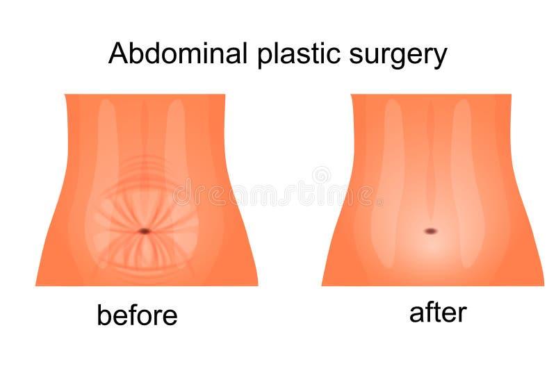 Abdomen femelle avant et après abdominoplasty illustration de vecteur