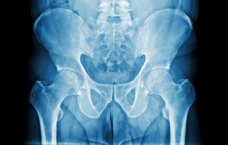 Abdomen X-Ray. Front view x-ray of a man's abdomen royalty free stock images