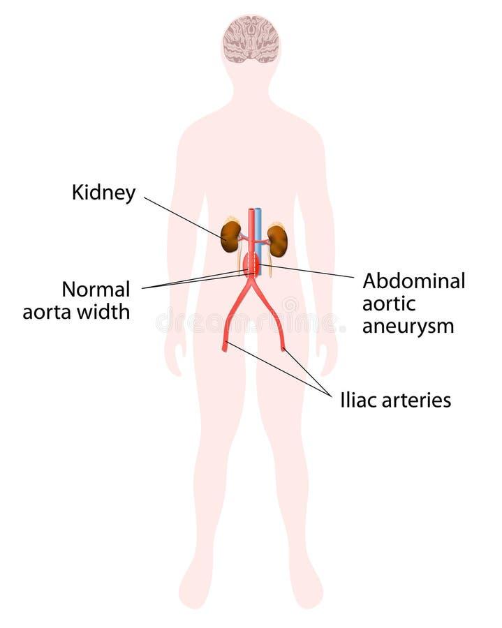 Abdominal aortic aneurysm stock vector illustration of balloon download abdominal aortic aneurysm stock vector illustration of balloon 49381632 ccuart Images