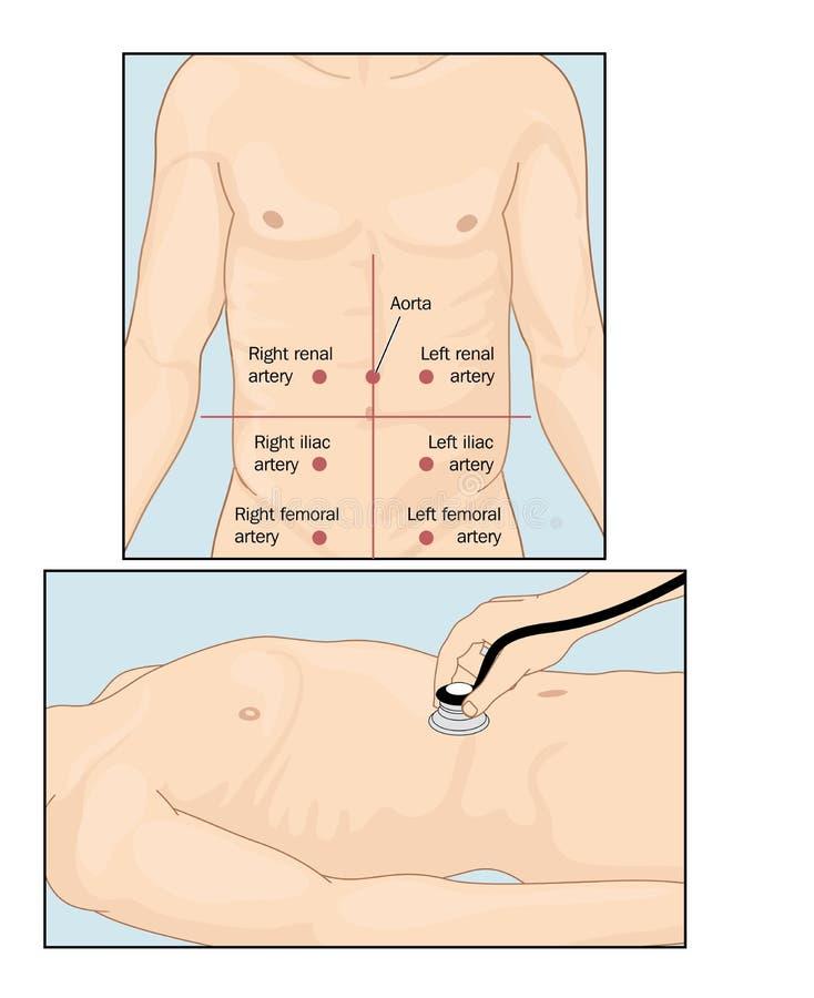 Download Abdominal auscultation stock vector. Illustration of medicine - 58972776