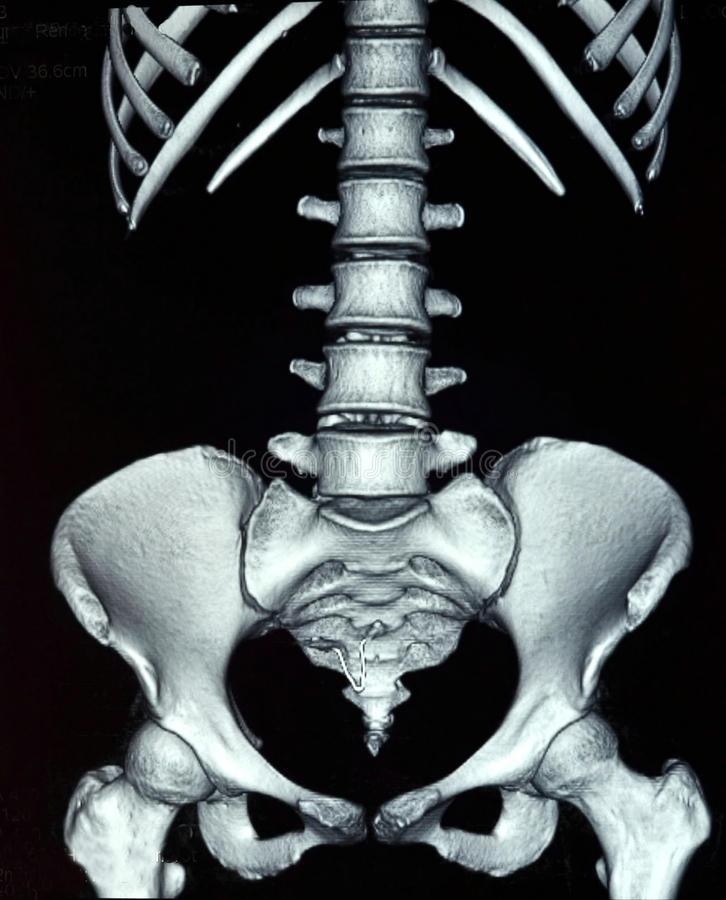 Abdominal X-ray stock illustration