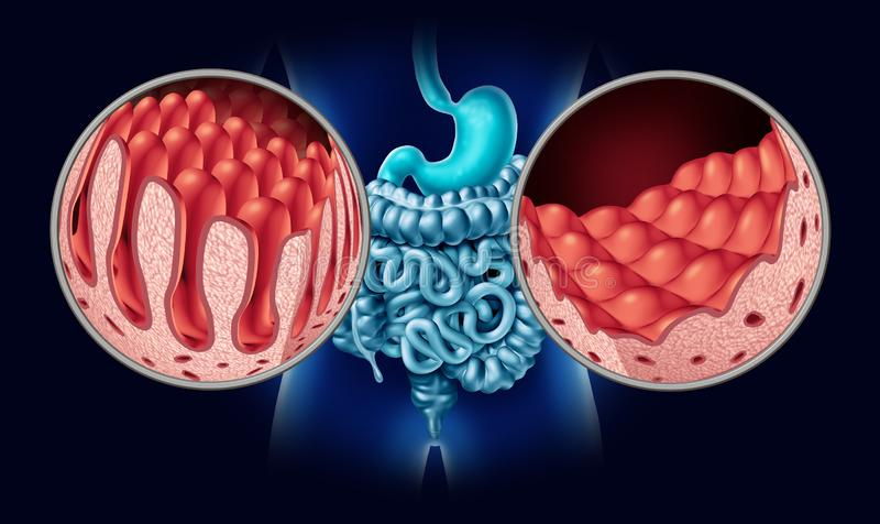 Abdominale abdominale Krankheit stock abbildung