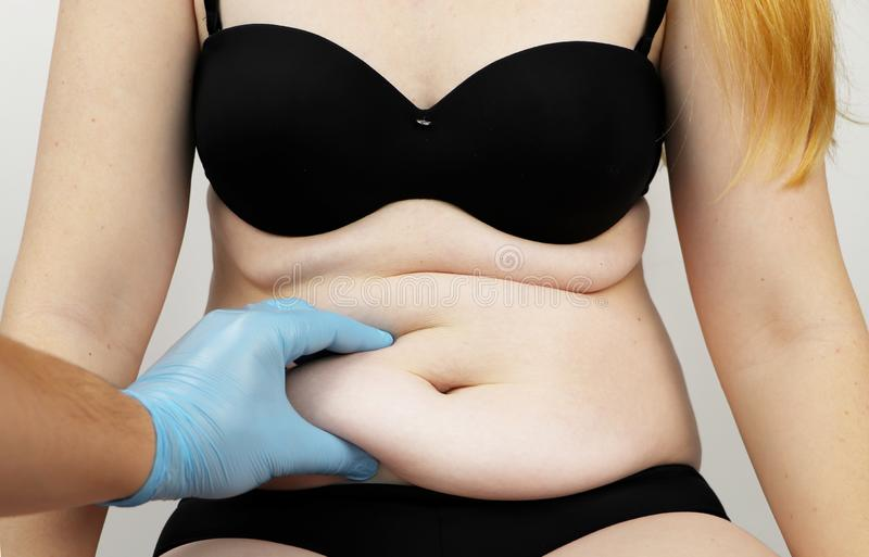 Abdominoplasty and torsoplasty: abdominal liposuction and removal of the apron. The patient at the reception at the plastic. Torsoplasty and abdominoplasty royalty free stock photo