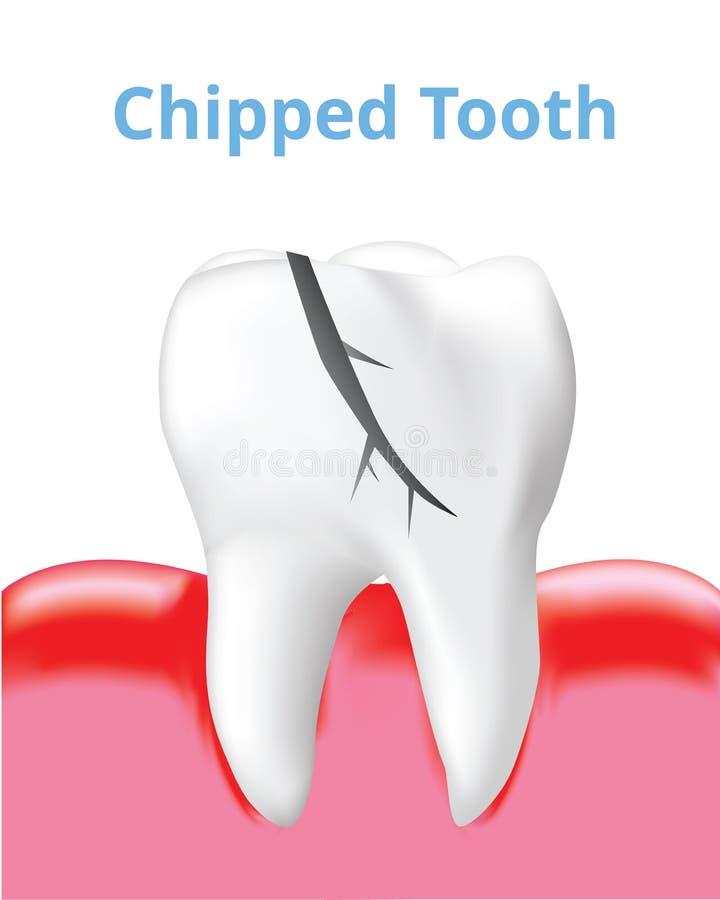 Abgebrochener Zahn und entflammter Gummi lokalisiert auf weißem Hintergrund, realistischer Entwurf Vektor lizenzfreie abbildung