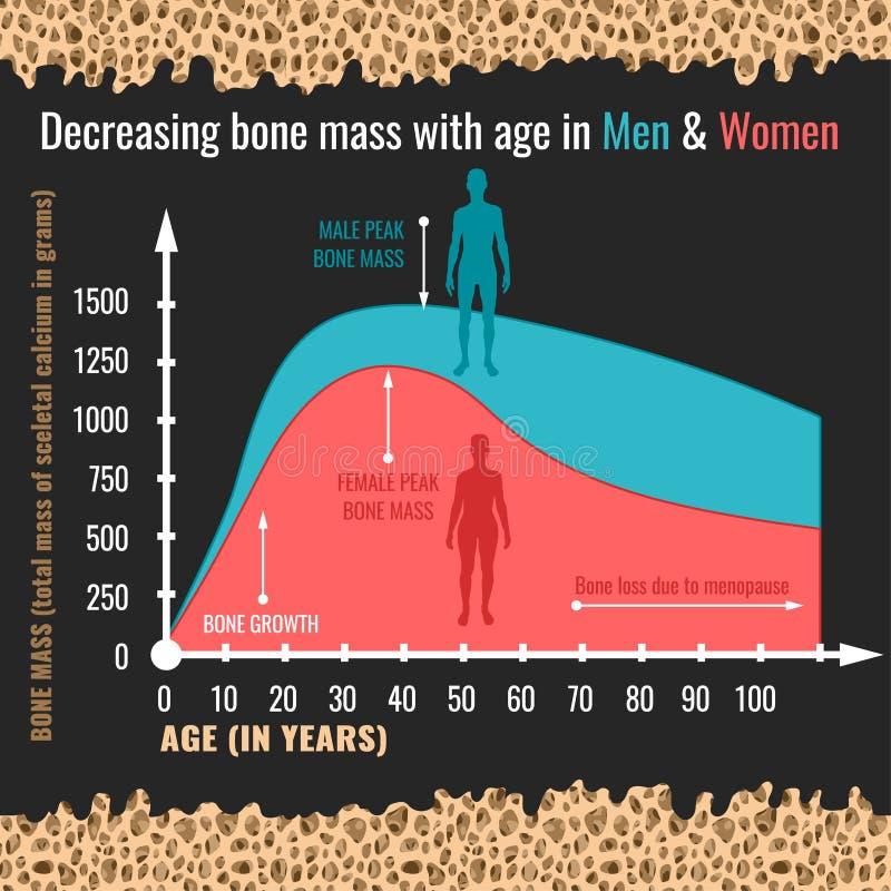 Abnehmende Knochenmasse stock abbildung