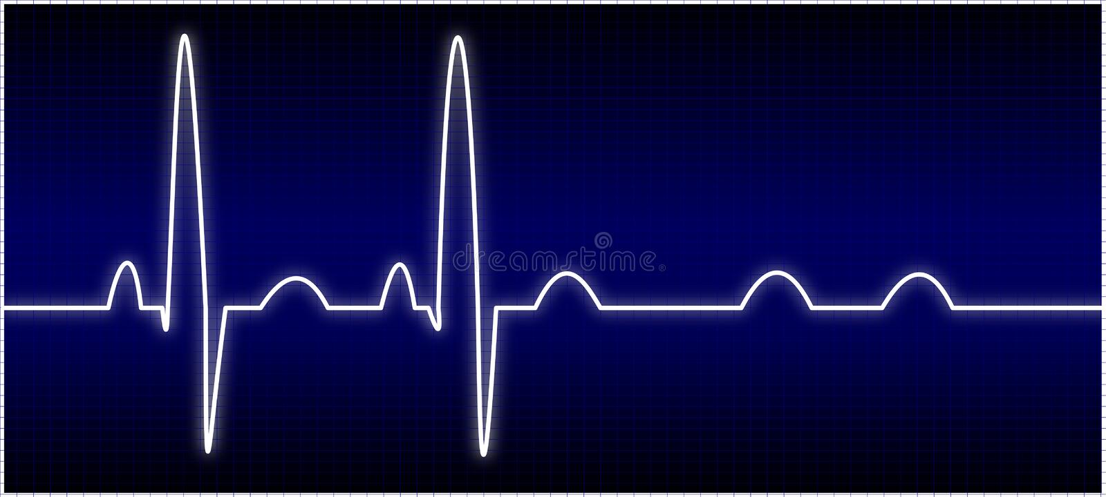 Download Abnormal EKG stock illustration. Illustration of frequency - 7074189