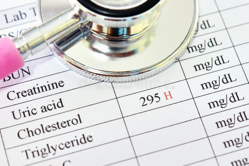 Abnormal high cholesterol test result. With stethoscope royalty free stock image