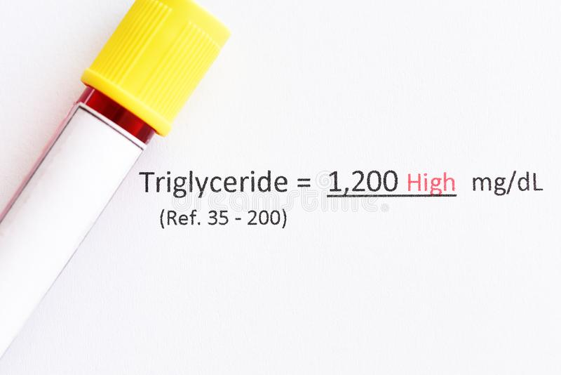 Abnormal high level triglyceride test result. With blood sample royalty free stock photography