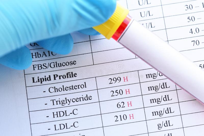 Abnormal high lipid test result. With blood sample royalty free stock photo