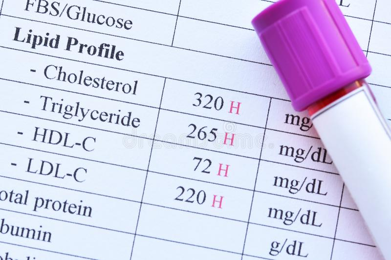Abnormal high lipid test result. With blood sample stock photography