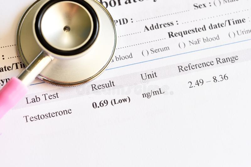 Abnormal low testosterone hormone test result stock images