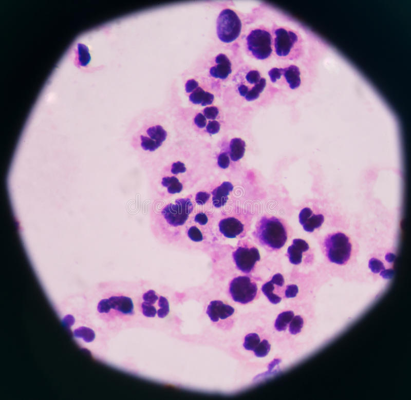 Abnormal neutrophil in pleural fluid smear. Sepsis or septicaemia is a life-threatening illness. Presence of numerous bacteria in the blood, causes the body to stock photo