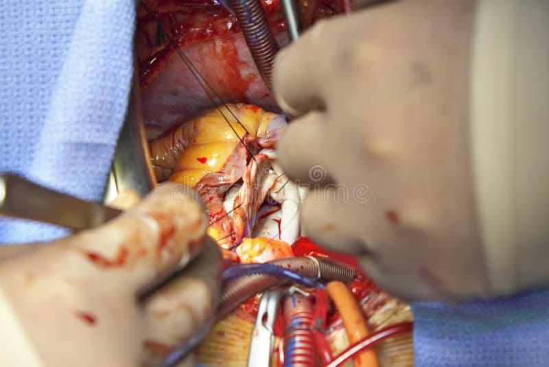 Abra a cirurgia cardíaca. Plástico da válvula Mitral. foto de stock royalty free