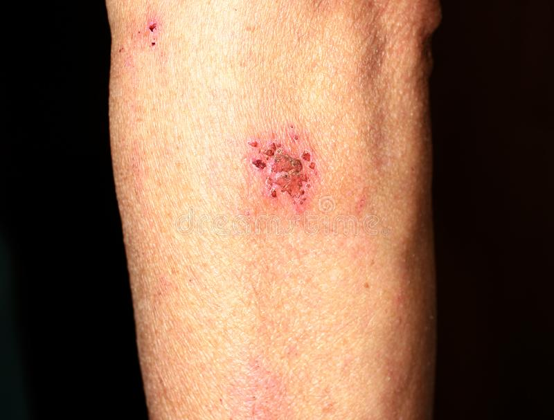Abrasion on the arm. Wound on the elbow. royalty free stock photography