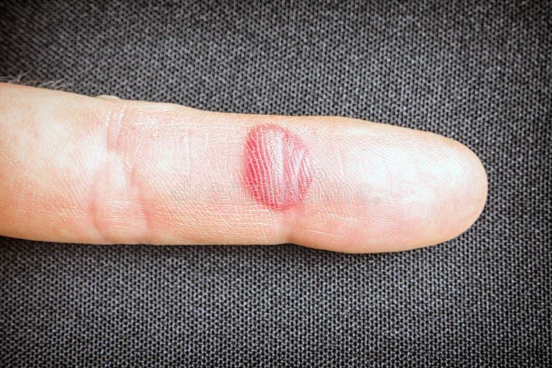 Abrasion ensanglantée sur le doigt photos stock