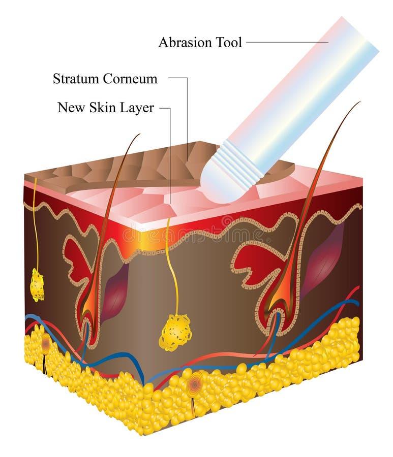 abrazi skóra ilustracji