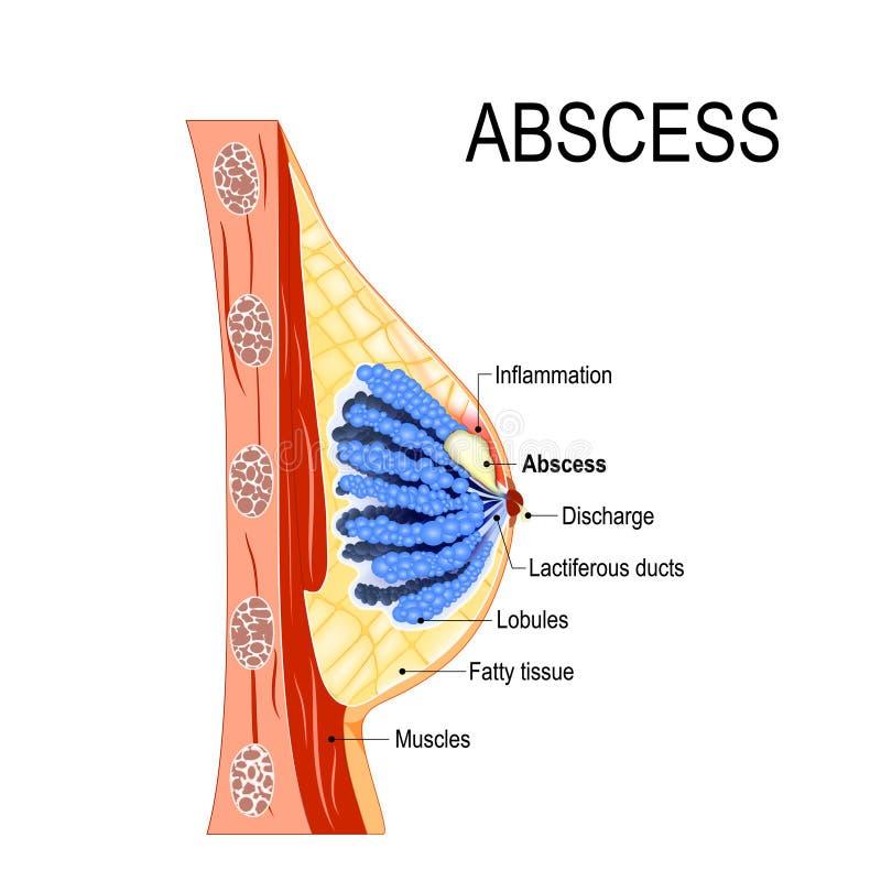 absceso Corte transversal de la glándula mamaria con la inflamación ilustración del vector
