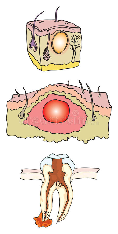 Abscess Stock Images